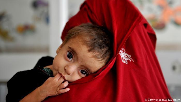 افزایش شدید شمار بچه ها مبتلا به سوء تغذیه در یمن